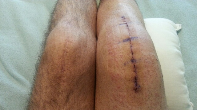 Knee Replacement  a  03-05-14.jpg